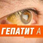 Гепатит а - болезнь Боткина