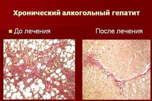 Результат лечения алкогольного гепатита
