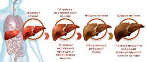 Симптомы вирусного гепатита В