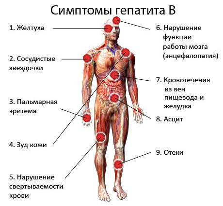 Симптомы гепатита В у детей