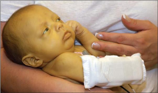 Симптомы гепатита А у детей