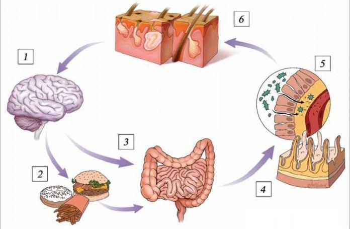 Микробиота головного мозга