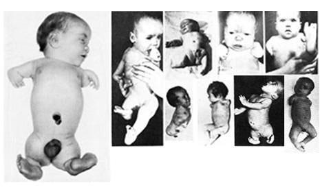 Новорожденные с аномалиями