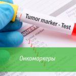 опухолевые маркеры