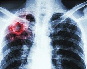 Как отличить туберкулез от COVID-19