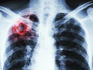 Борьба с туберкулезом в Украине: возможности ПМГ и новые модели взаимодействия